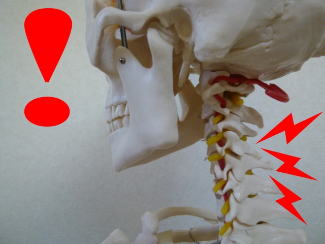 頸椎 ストレートネック